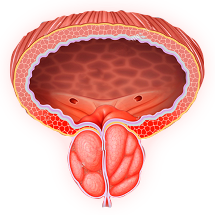 Prostaline - blakus efekti - sūdzības
